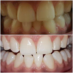 Zähne bleachen ohne Giftstoffe