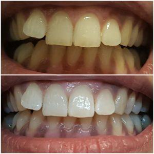 Ergebnisbild Zahnaufhellung
